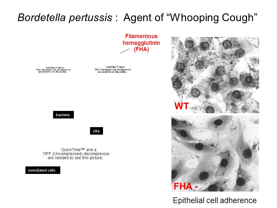 """Bordetella pertussis : Agent of """"Whooping Cough"""" WT FHA - Epithelial cell adherence Filamentous hemagglutinin (FHA) bacteria cilia nonciliated cells"""