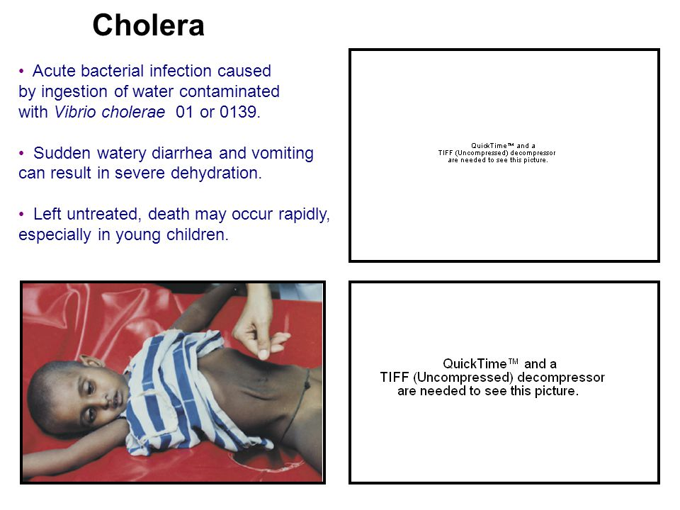 Cholera Acute bacterial infection caused by ingestion of water contaminated with Vibrio cholerae 01 or 0139. Sudden watery diarrhea and vomiting can r