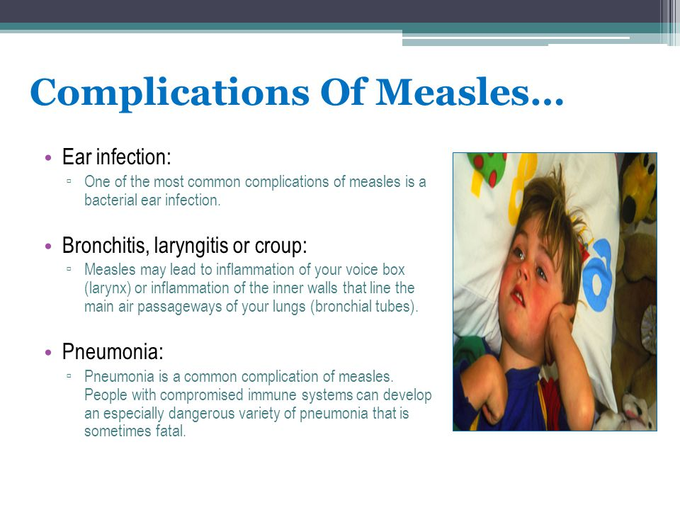 Complications Of Measles… Ear infection: ▫ One of the most common complications of measles is a bacterial ear infection. Bronchitis, laryngitis or cro