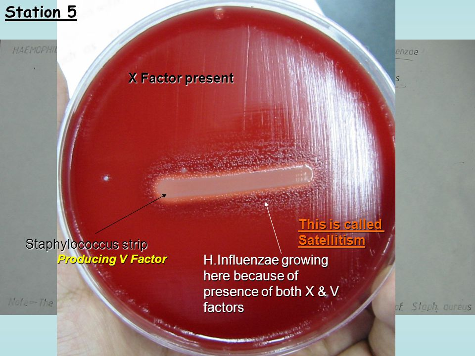 X Factor present Staphylococcus strip Producing V Factor H.Influenzae growing here because of presence of both X & V factors This is called Satellitis
