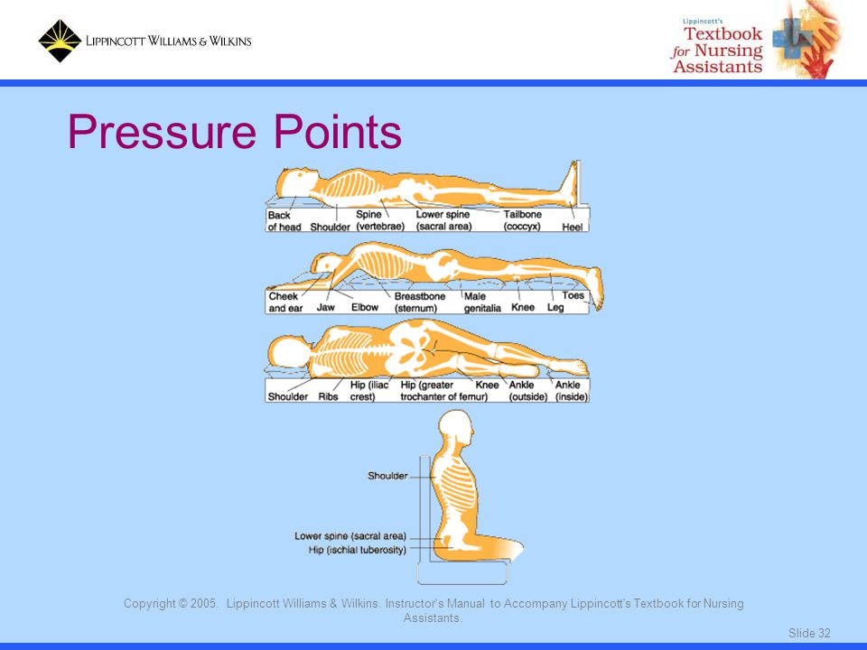 Slide 32 Copyright © 2005. Lippincott Williams & Wilkins. Instructor's Manual to Accompany Lippincott's Textbook for Nursing Assistants. Pressure Poin