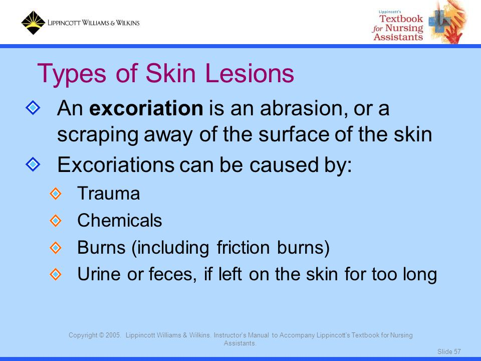 Slide 57 Copyright © 2005. Lippincott Williams & Wilkins. Instructor's Manual to Accompany Lippincott's Textbook for Nursing Assistants. Types of Skin