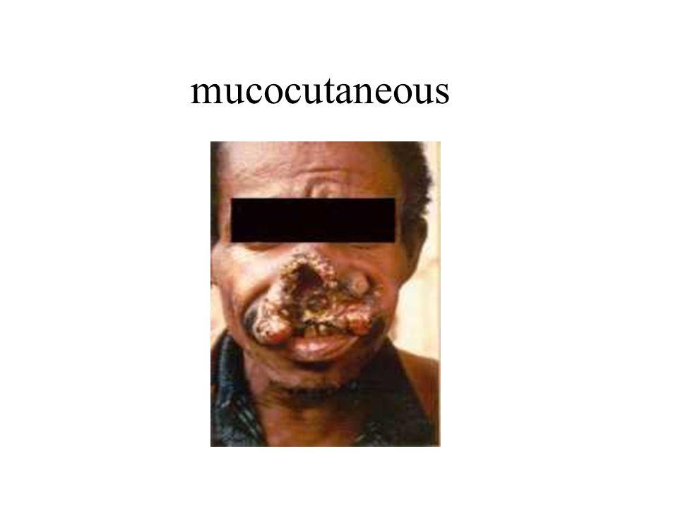 mucocutaneous