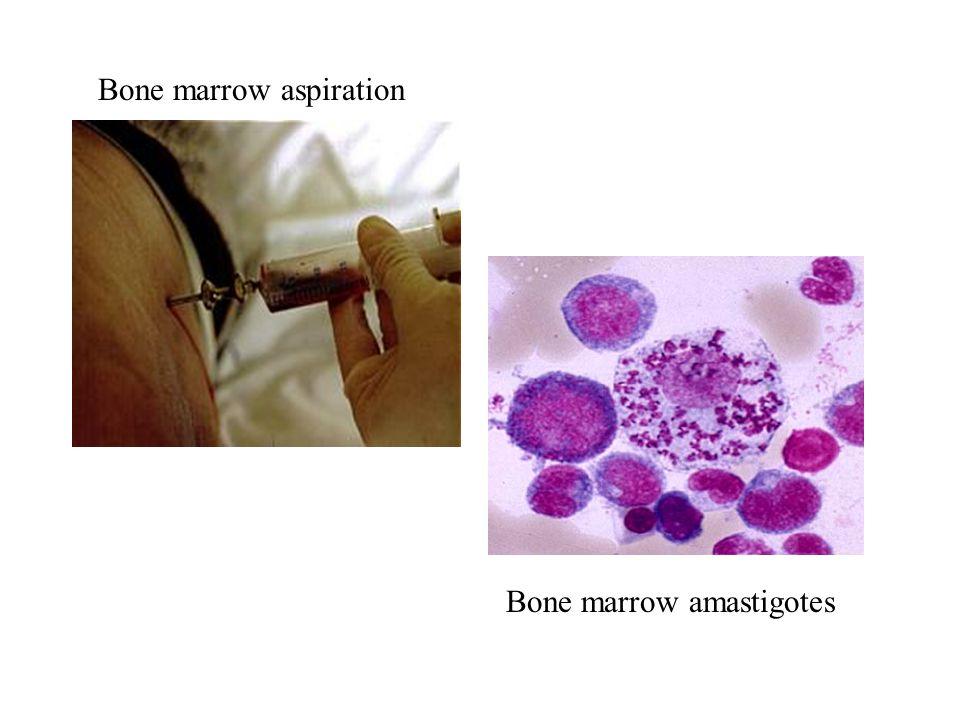 Bone marrow aspiration Bone marrow amastigotes