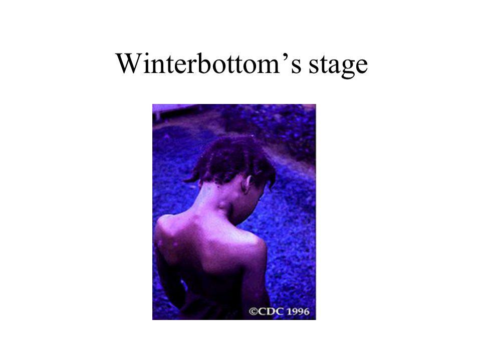 Winterbottom's stage