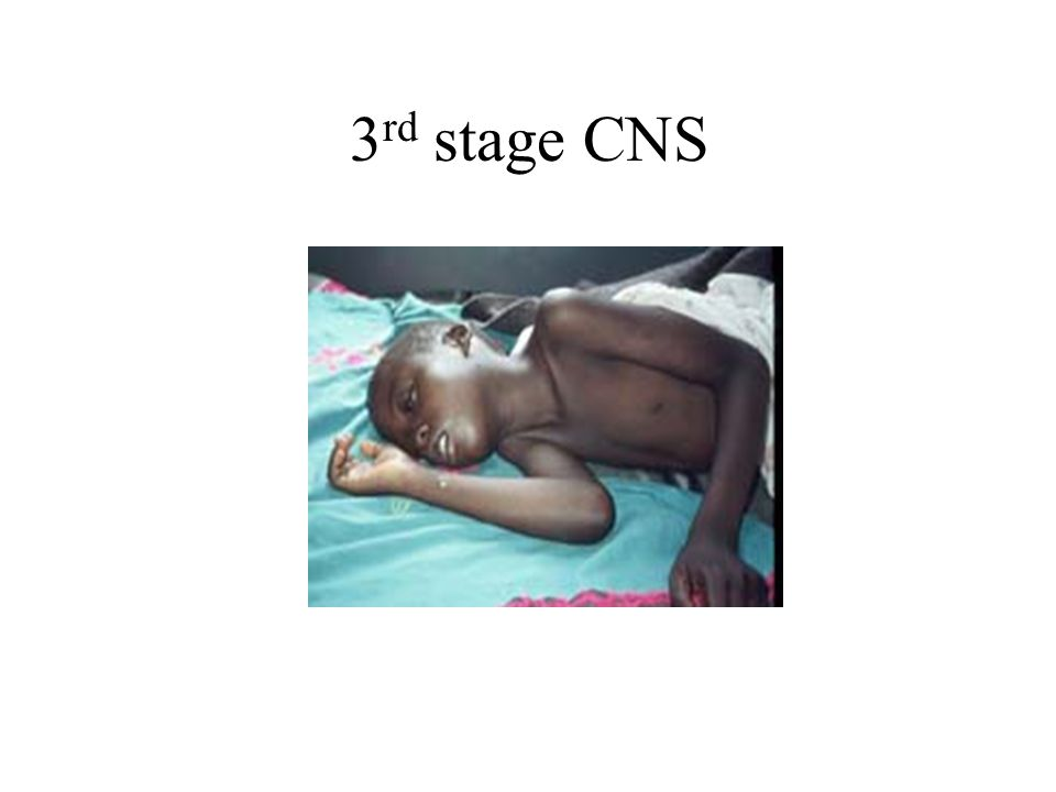 3 rd stage CNS