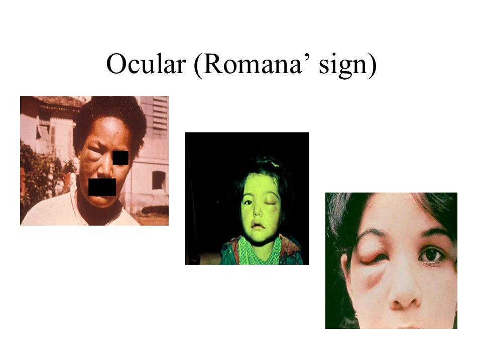Ocular (Romana' sign)
