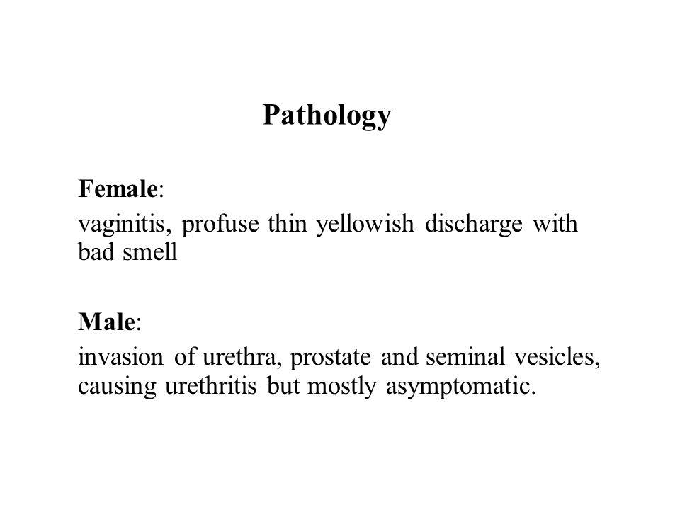 Pathology Female: vaginitis, profuse thin yellowish discharge with bad smell Male: invasion of urethra, prostate and seminal vesicles, causing urethri