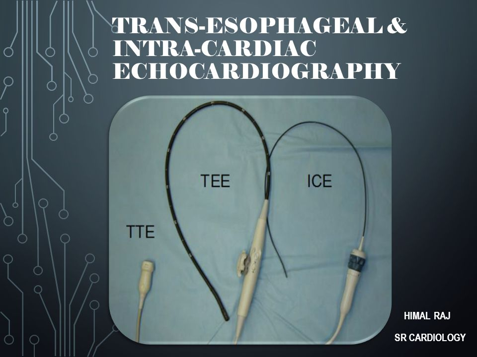 HISTORY  Side and Gosling (1971) - TEE for CwD of cardiac flow  Frazin et al (1976) - TEE M mode echo  Hisanaga et al (1977) - illustrated use of cross sectional real time imaging 2