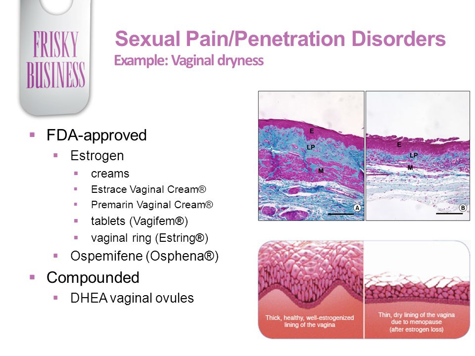 Example: Vaginal dryness Sexual Pain/Penetration Disorders  FDA-approved  Estrogen  creams  Estrace Vaginal Cream®  Premarin Vaginal Cream®  tablets (Vagifem®)  vaginal ring (Estring®)  Ospemifene (Osphena®)  Compounded  DHEA vaginal ovules