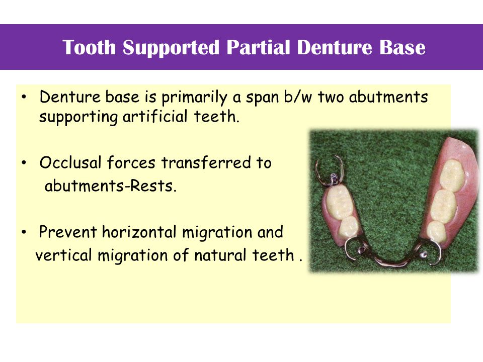 Tooth Supported Partial Denture Base Denture base is primarily a span b/w two abutments supporting artificial teeth. Occlusal forces transferred to ab