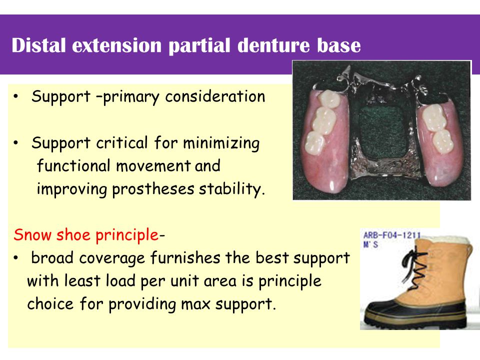 Distal extension partial denture base Support –primary consideration Support critical for minimizing functional movement and improving prostheses stability.