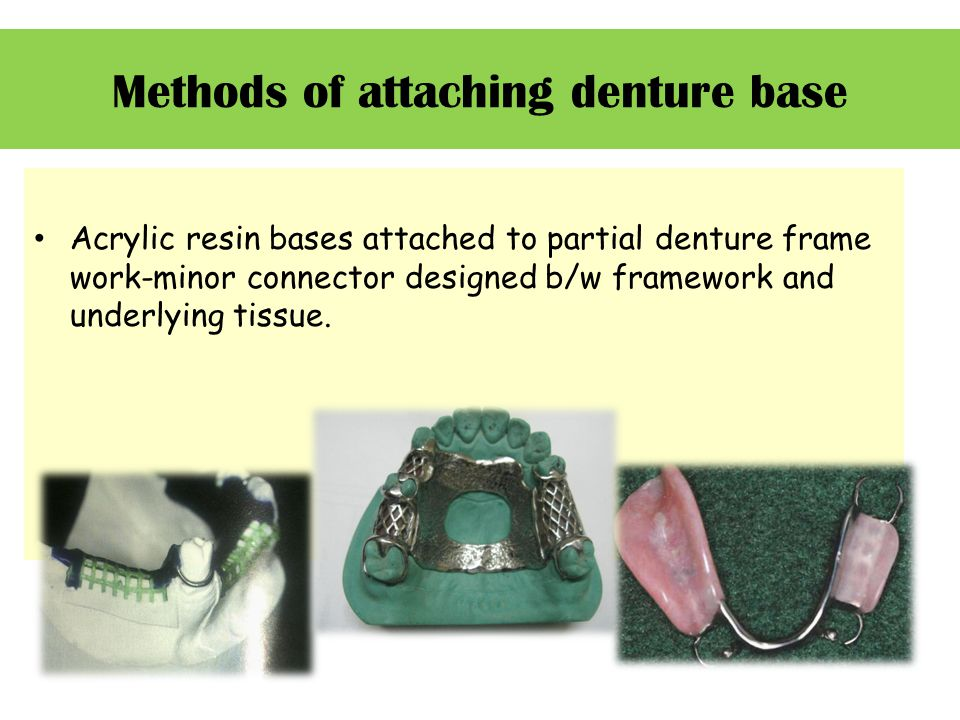 Methods of attaching denture base Acrylic resin bases attached to partial denture frame work-minor connector designed b/w framework and underlying tissue.