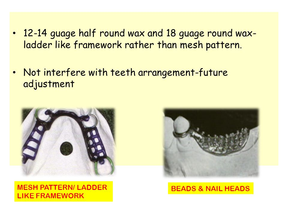 12-14 guage half round wax and 18 guage round wax- ladder like framework rather than mesh pattern. Not interfere with teeth arrangement-future adjustm
