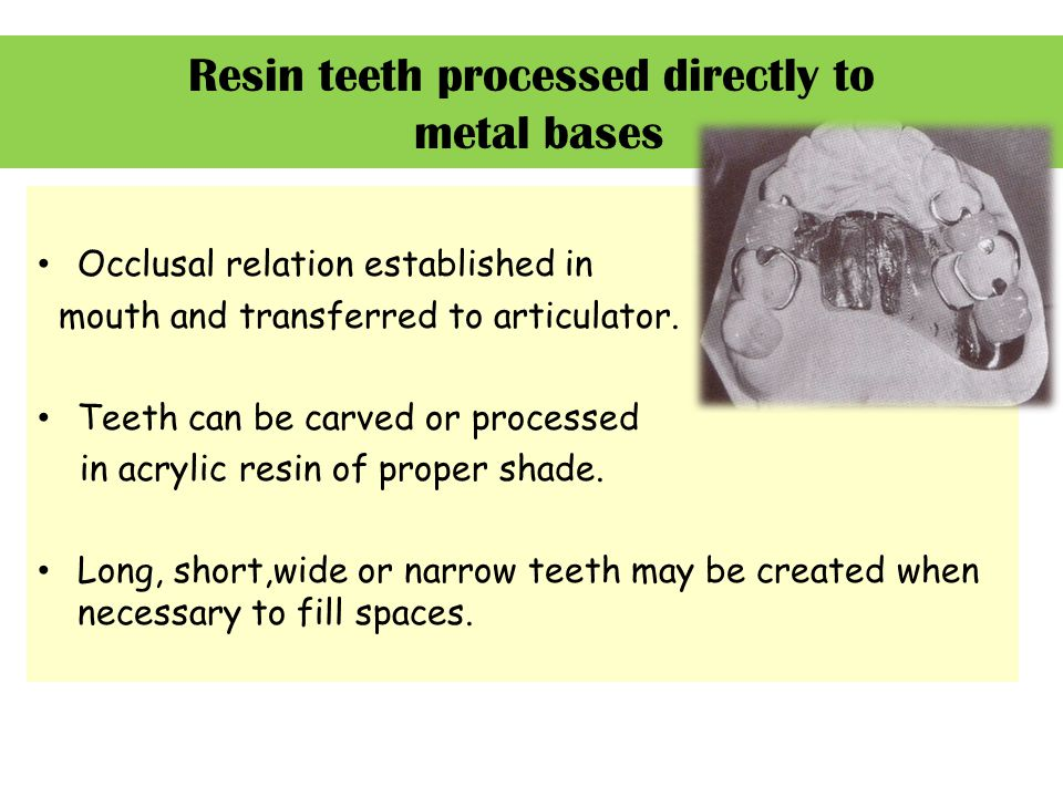 Resin teeth processed directly to metal bases Occlusal relation established in mouth and transferred to articulator. Teeth can be carved or processed