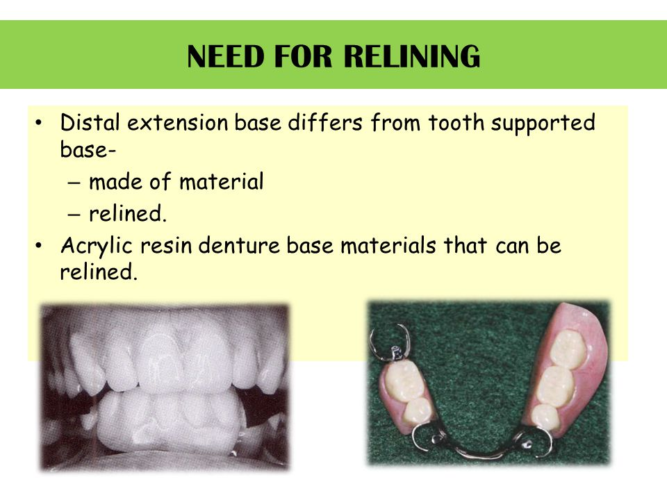 NEED FOR RELINING Distal extension base differs from tooth supported base- – made of material – relined. Acrylic resin denture base materials that can