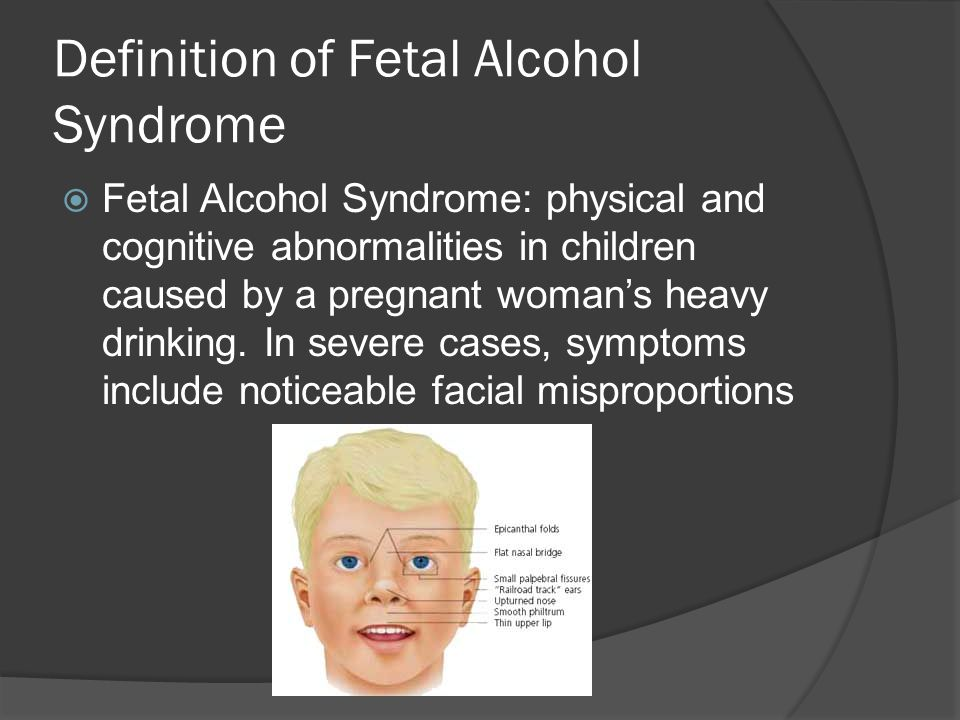 Definition of Fetal Alcohol Syndrome  Fetal Alcohol Syndrome: physical and cognitive abnormalities in children caused by a pregnant woman's heavy drinking.