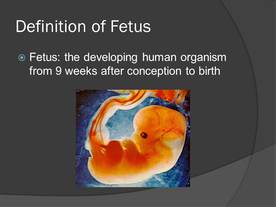 Definition of Fetus  Fetus: the developing human organism from 9 weeks after conception to birth