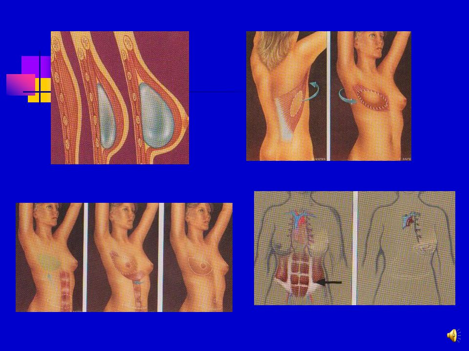 After mastectomy NO reconstruction Typically no need for mammograms Monthly self chest exams critical