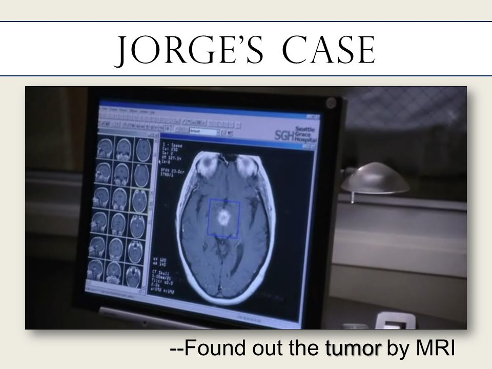 Jorge's Case tumor --Found out the tumor by MRI