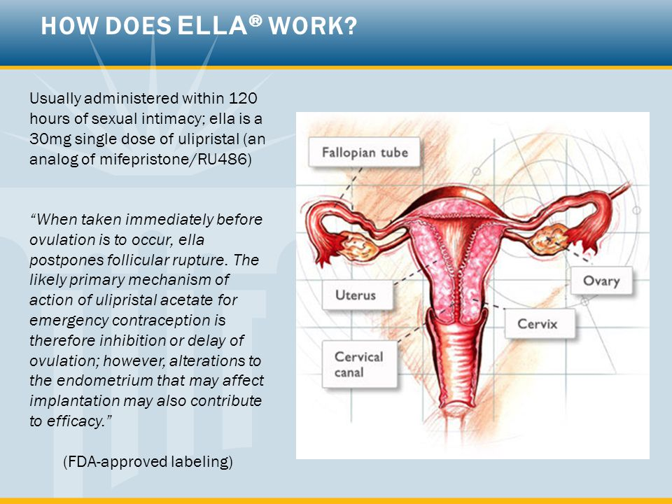 "Usually administered within 120 hours of sexual intimacy; ella is a 30mg single dose of ulipristal (an analog of mifepristone/RU486) ""When taken immed"