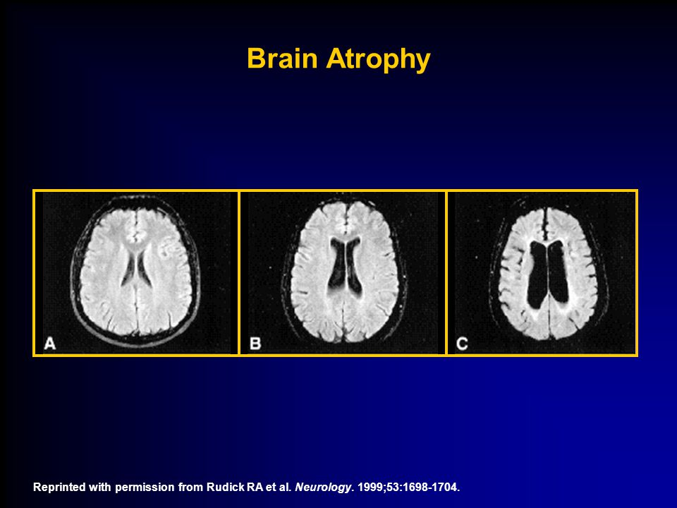 Reprinted with permission from Rudick RA et al. Neurology. 1999;53:1698-1704. Brain Atrophy