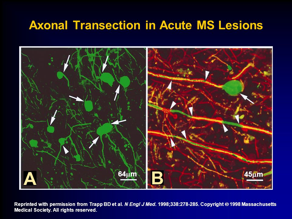 Axonal Transection in Acute MS Lesions 64  m 45  m A B Reprinted with permission from Trapp BD et al. N Engl J Med. 1998;338:278-285. Copyright  19