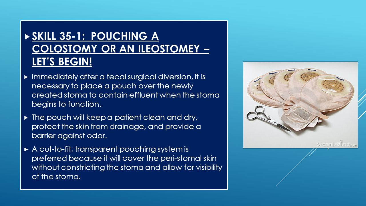  SKILL 35-1: POUCHING A COLOSTOMY OR AN ILEOSTOMEY – LET'S BEGIN!  Immediately after a fecal surgical diversion, it is necessary to place a pouch ov