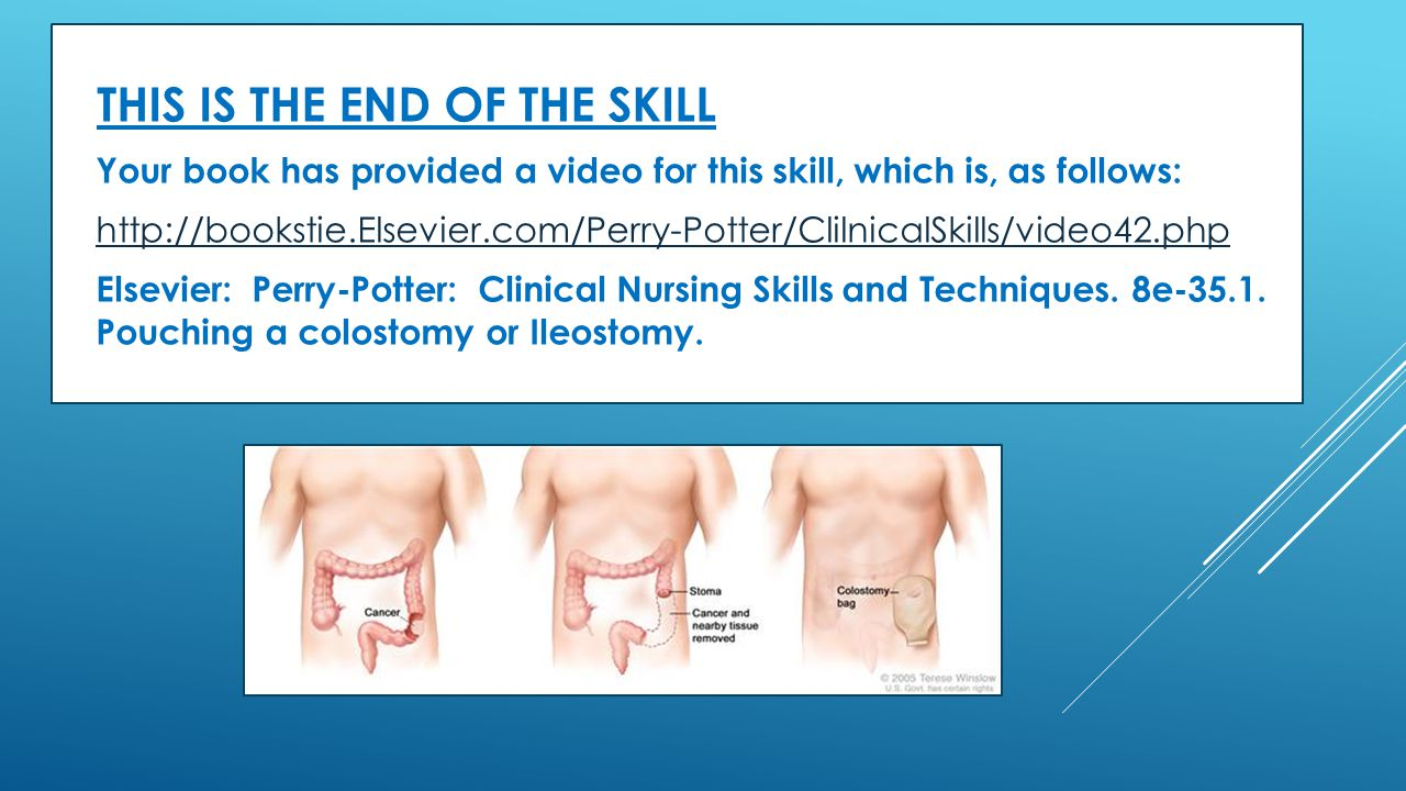  THIS IS THE END OF THE SKILL  Your book has provided a video for this skill, which is, as follows:  http://bookstie.Elsevier.com/Perry-Potter/Clil