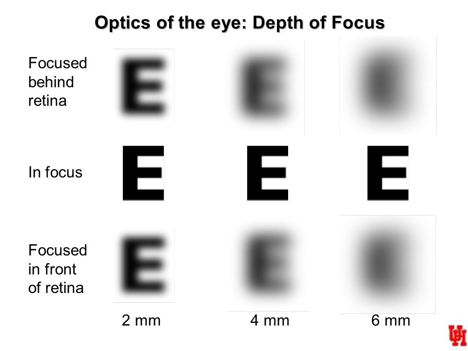 2 mm4 mm6 mm In focus Focused in front of retina Focused behind retina Optics of the eye: Depth of Focus