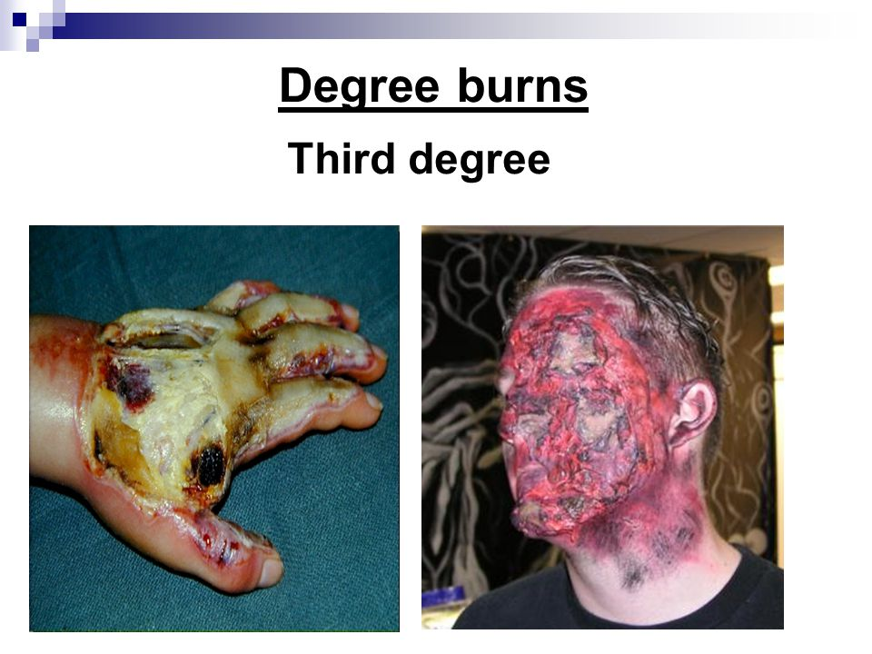 Degree burns Third degree