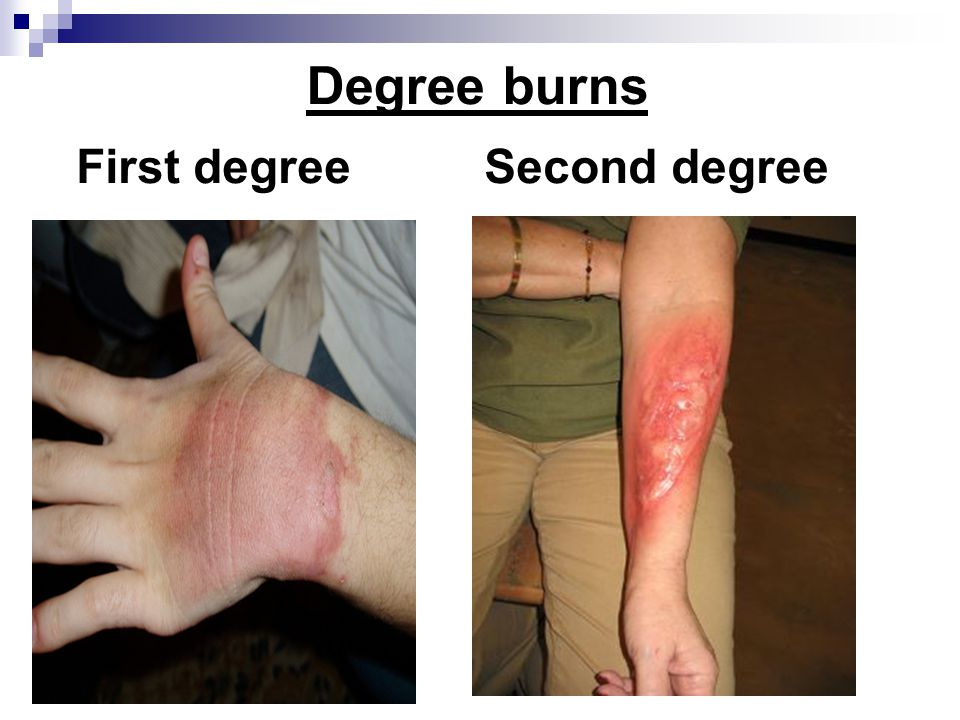 Degree burns First degreeSecond degree
