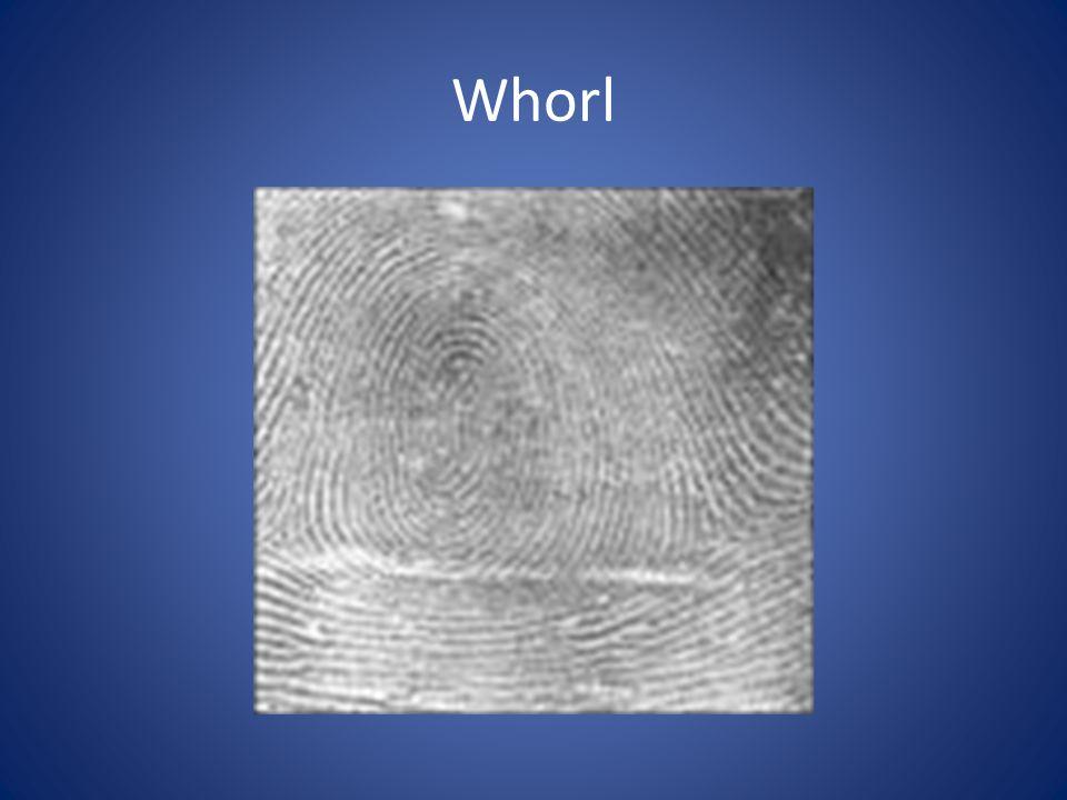 Whorl