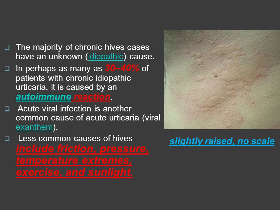 slightly raised, no scale  The majority of chronic hives cases have an unknown (idiopathic) cause.idiopathic  In perhaps as many as 30–40% of patien