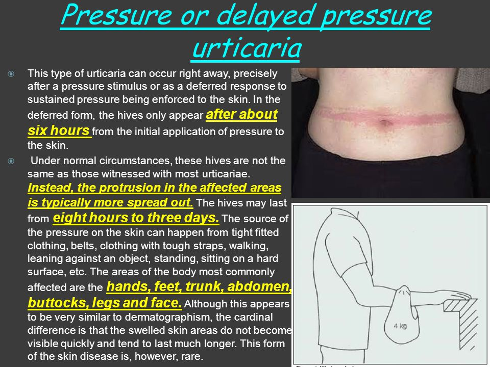 Pressure or delayed pressure urticaria  This type of urticaria can occur right away, precisely after a pressure stimulus or as a deferred response to