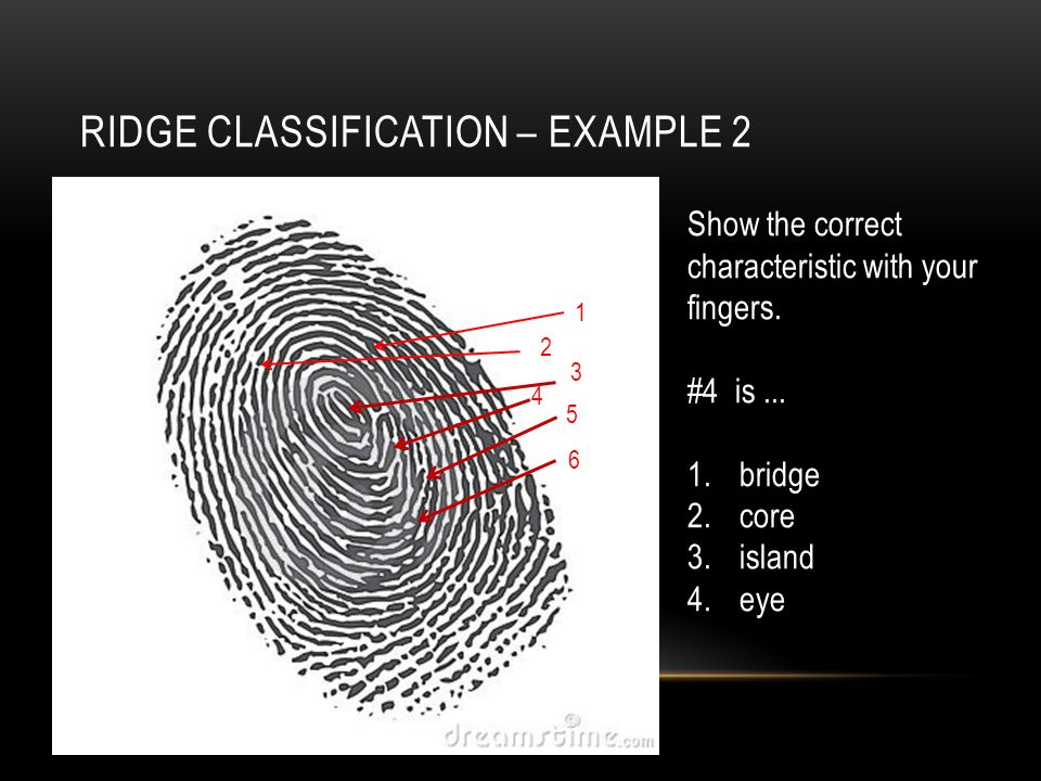 RIDGE CLASSIFICATION – EXAMPLE 2 4 2 3 6 5 1 Show the correct characteristic with your fingers.