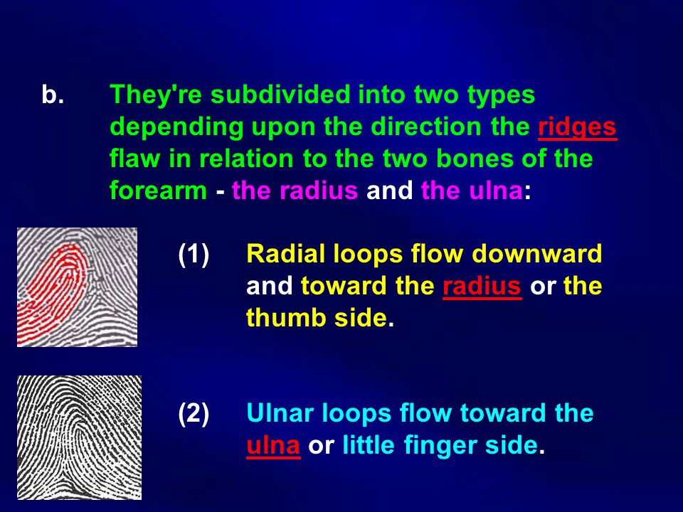 b. They're subdivided into two types depending upon the direction the ridges flaw in relation to the two bones of the forearm ‑ the radius and the uln