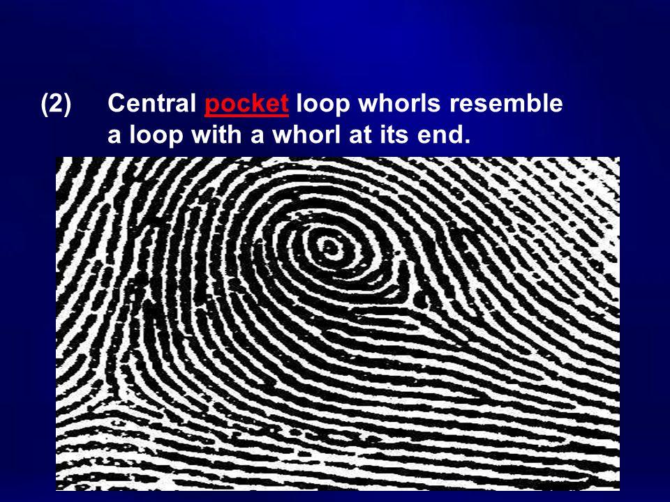 (2) Central pocket loop whorls resemble a loop with a whorl at its end.