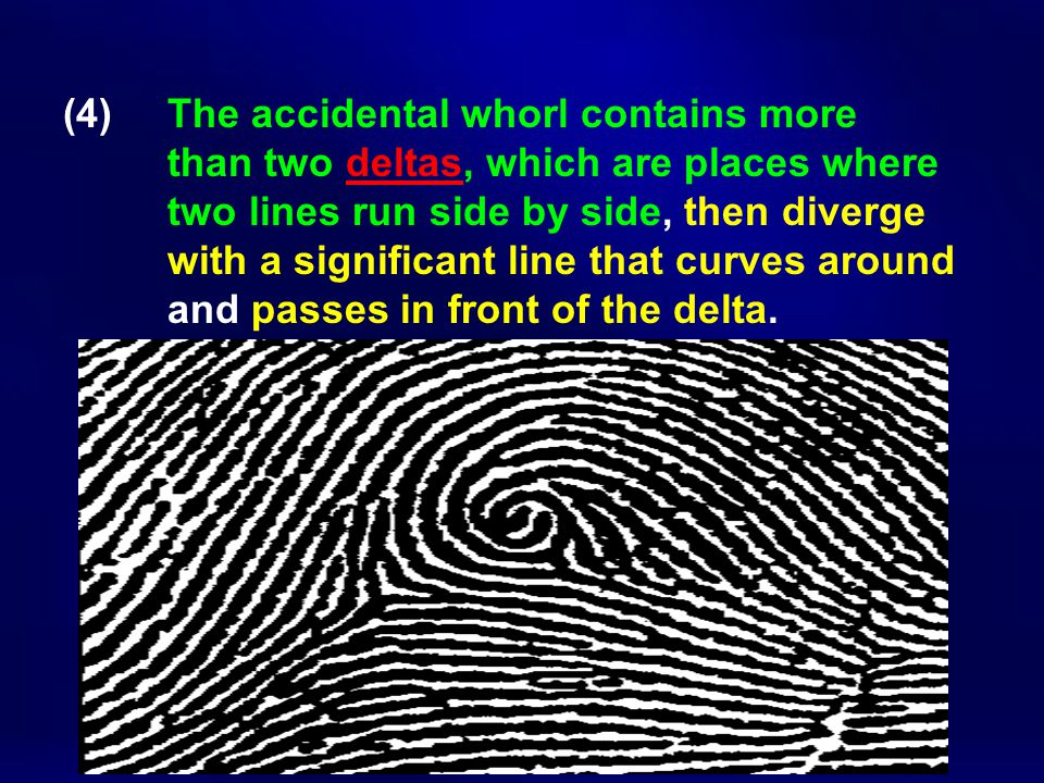 (4) The accidental whorl contains more than two deltas, which are places where two lines run side by side, then diverge with a significant line that c