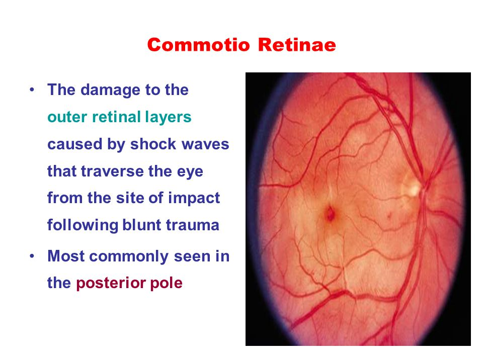Commotio Retinae The damage to the outer retinal layers caused by shock waves that traverse the eye from the site of impact following blunt trauma Mos