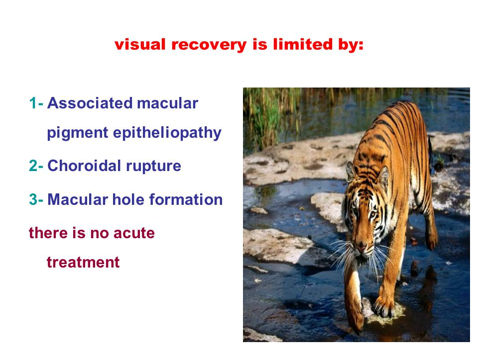 visual recovery is limited by: 1- Associated macular pigment epitheliopathy 2- Choroidal rupture 3- Macular hole formation there is no acute treatment