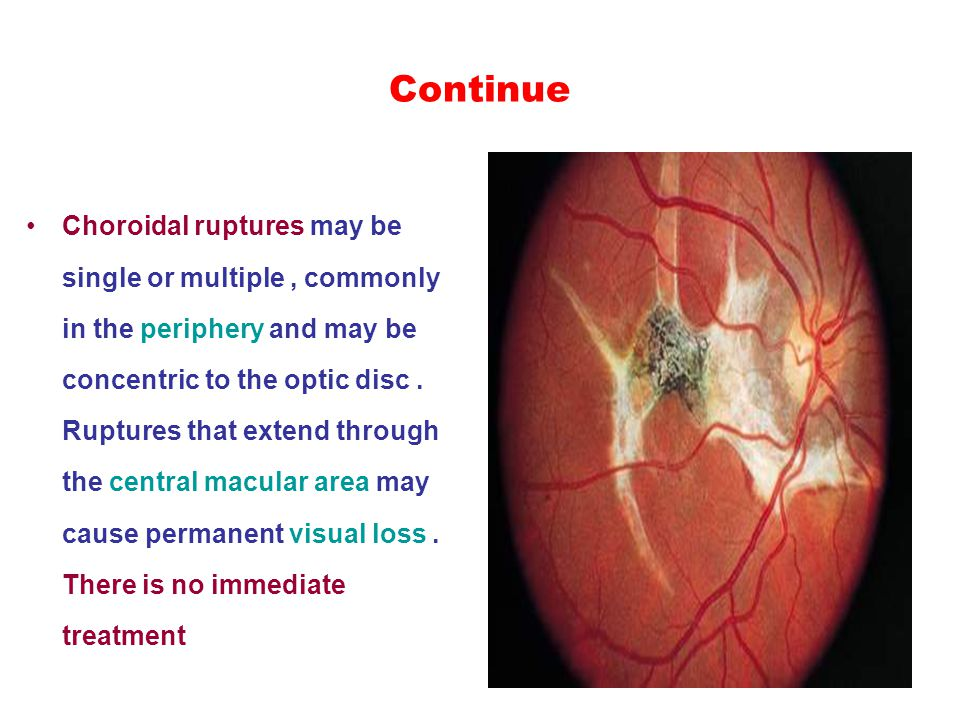 Continue Choroidal ruptures may be single or multiple, commonly in the periphery and may be concentric to the optic disc.