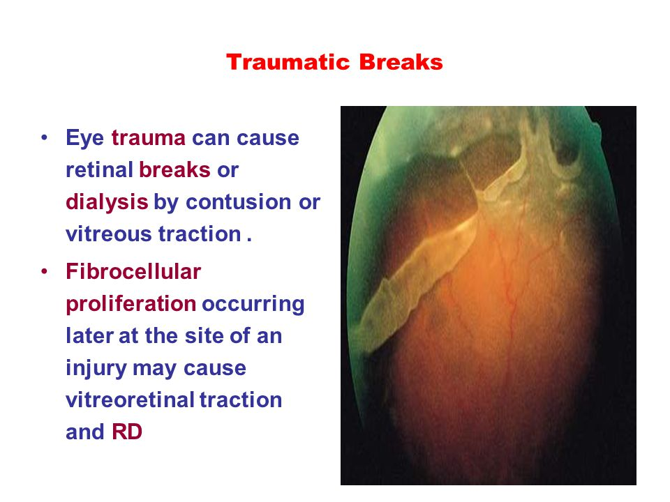 Traumatic Breaks Eye trauma can cause retinal breaks or dialysis by contusion or vitreous traction. Fibrocellular proliferation occurring later at the