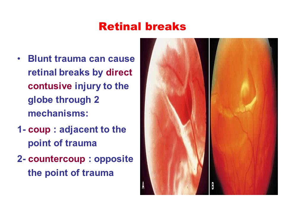 Retinal breaks Blunt trauma can cause retinal breaks by direct contusive injury to the globe through 2 mechanisms: 1- coup : adjacent to the point of trauma 2- countercoup : opposite the point of trauma
