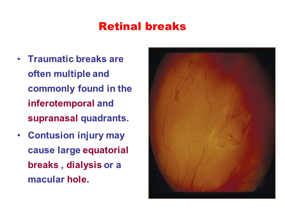 Retinal breaks Traumatic breaks are often multiple and commonly found in the inferotemporal and supranasal quadrants. Contusion injury may cause large