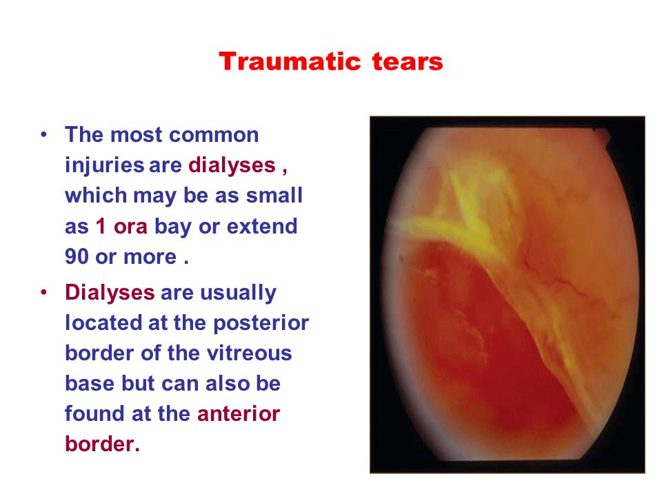 Traumatic tears The most common injuries are dialyses, which may be as small as 1 ora bay or extend 90 or more. Dialyses are usually located at the po