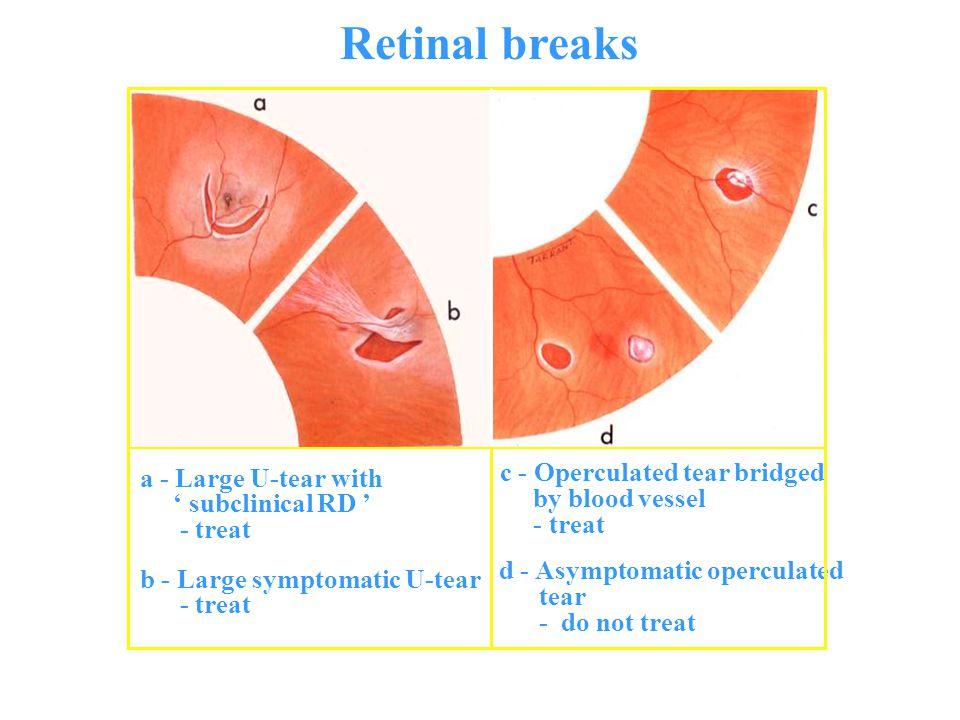 Retinal breaks a - Large U-tear with ' subclinical RD ' - treat b - Large symptomatic U-tear - treat c - Operculated tear bridged by blood vessel - tr