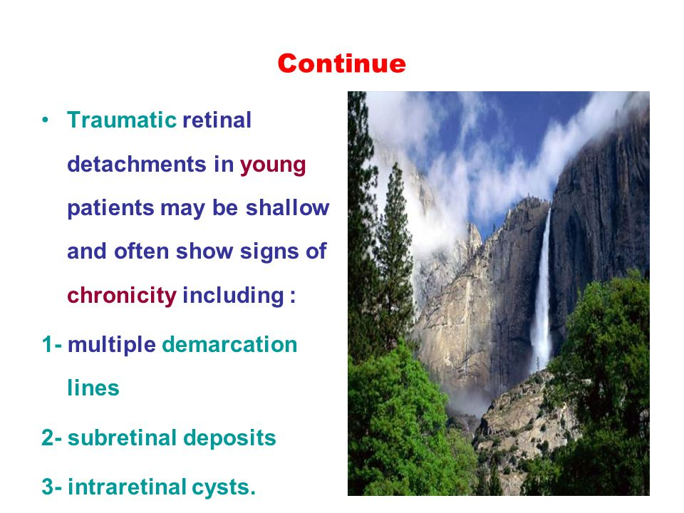 Continue Traumatic retinal detachments in young patients may be shallow and often show signs of chronicity including : 1- multiple demarcation lines 2