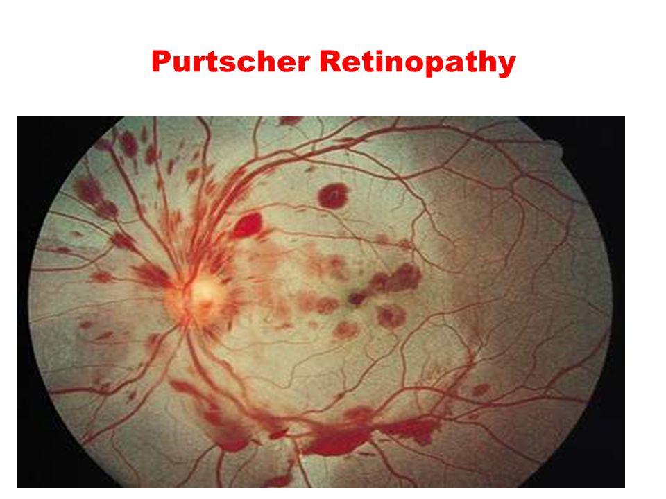 Purtscher Retinopathy