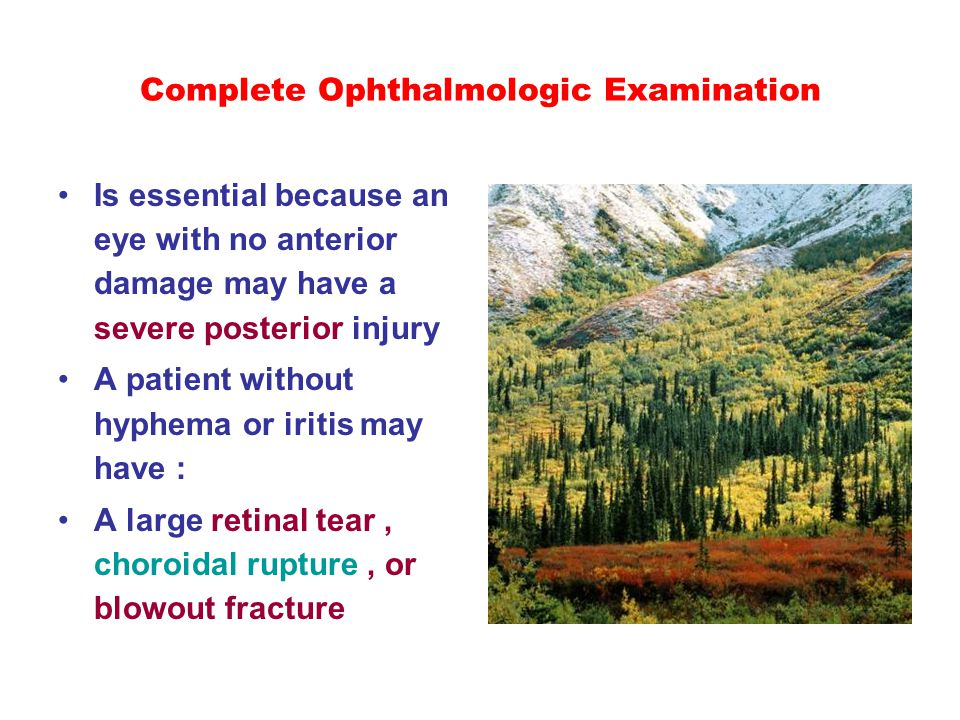 Complete Ophthalmologic Examination Is essential because an eye with no anterior damage may have a severe posterior injury A patient without hyphema o